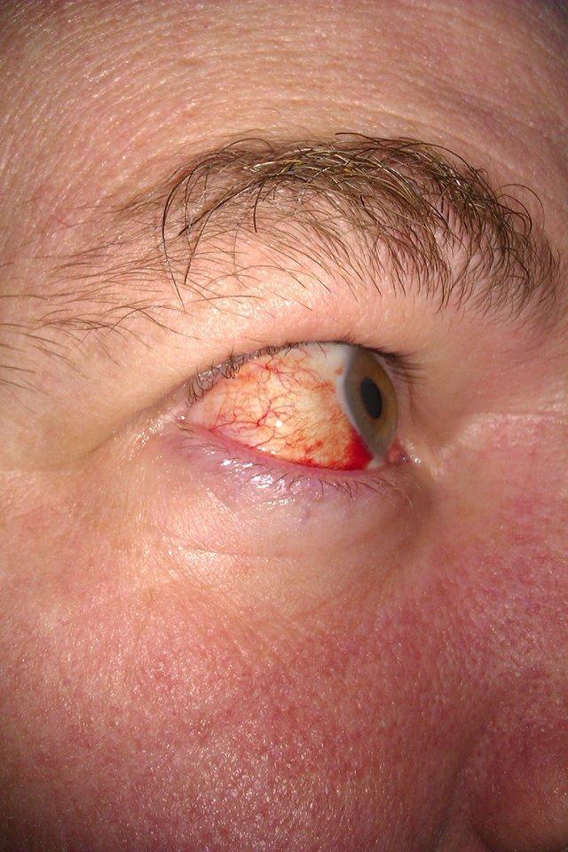Bloodshot eye
