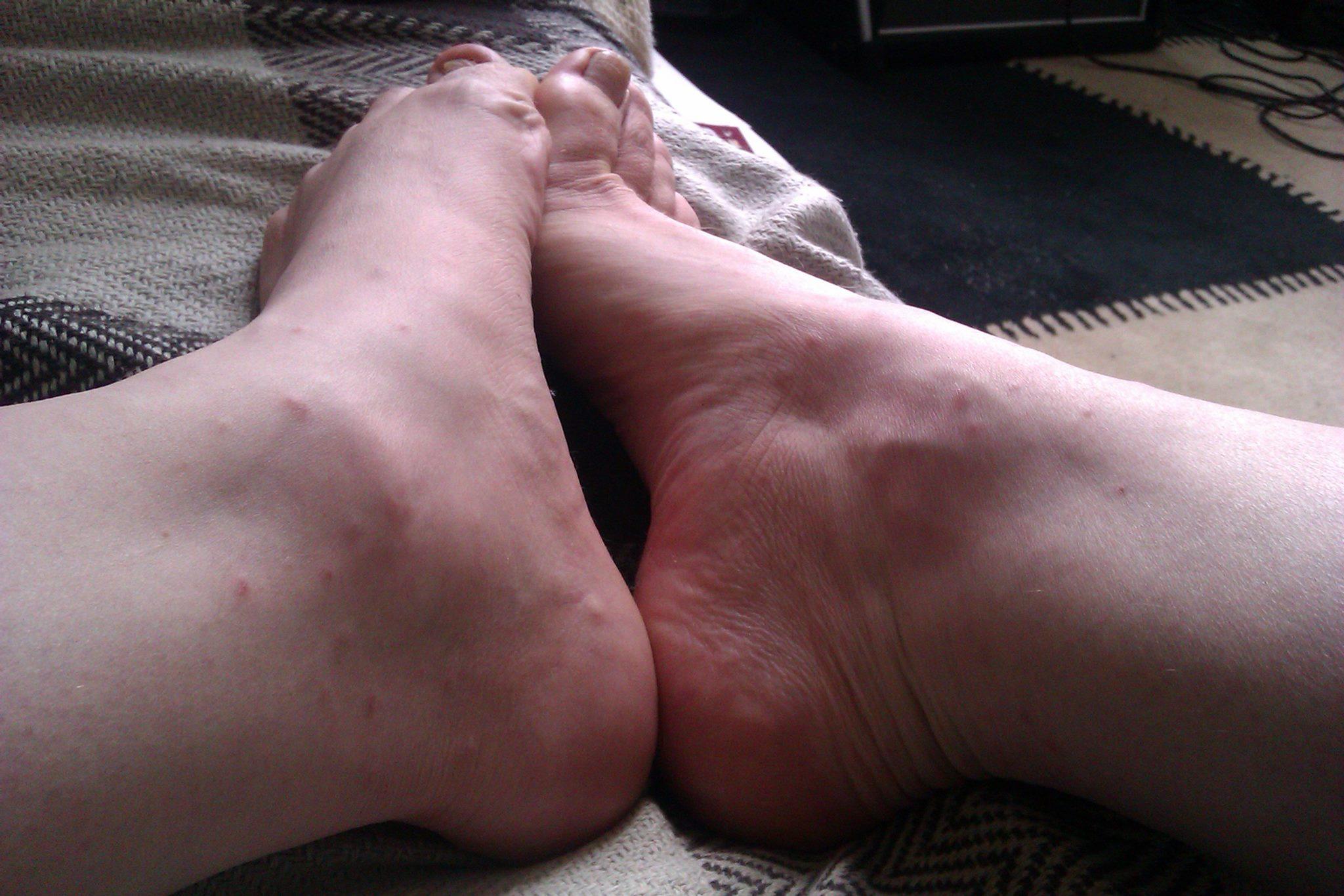 Dot ankles