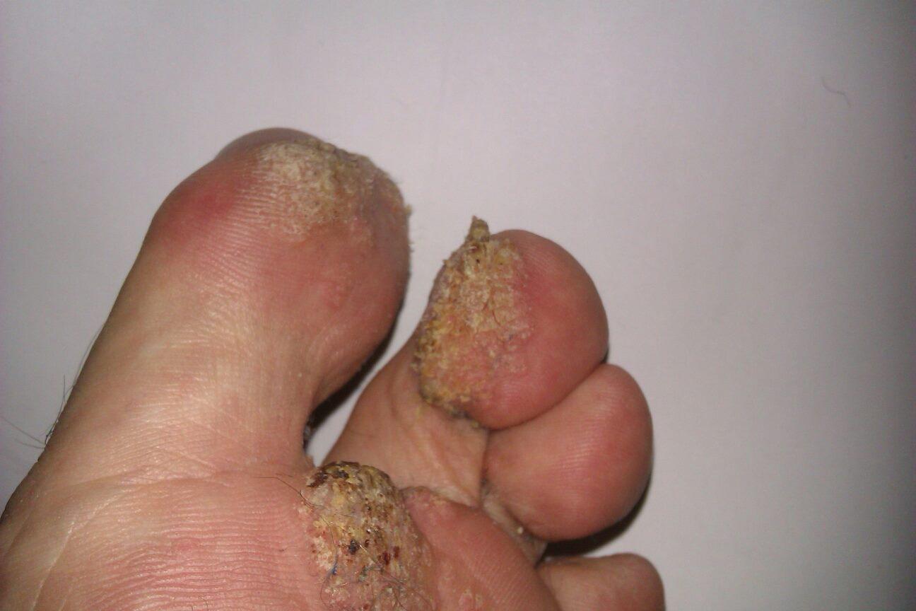 Fuck feet one