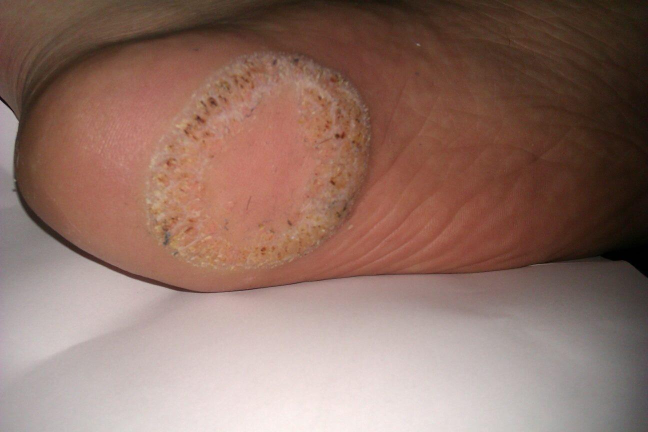 Fuck feet three